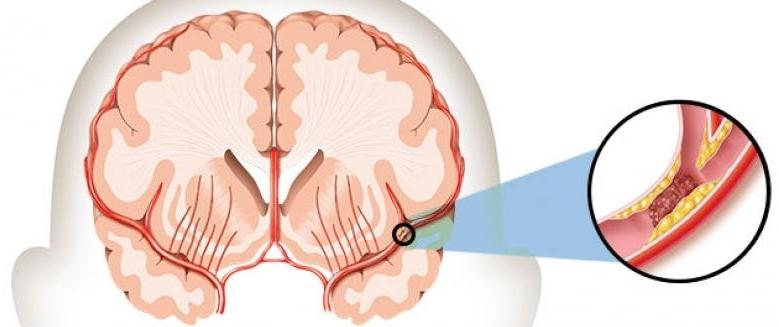 Бага тархины цус харвалт гэж юу вэ? Сэргээн засах эмчилгээний талаар