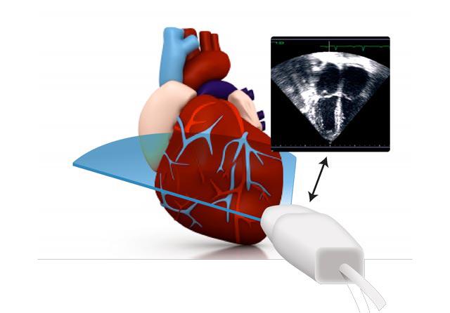 Зүрхний шигдээсийн оношлогоо
